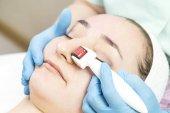 女人经历医用微针疗法与现代医学仪器真皮滚子的过程